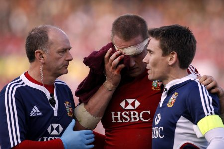 Robson: rugby injury crisis easing